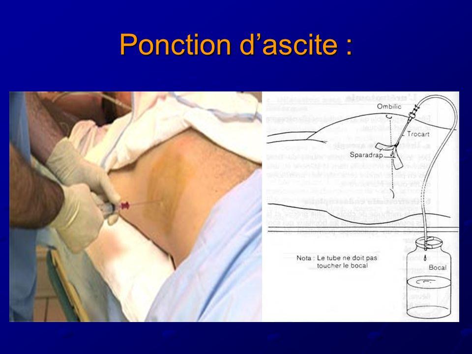 Ponction dascite :