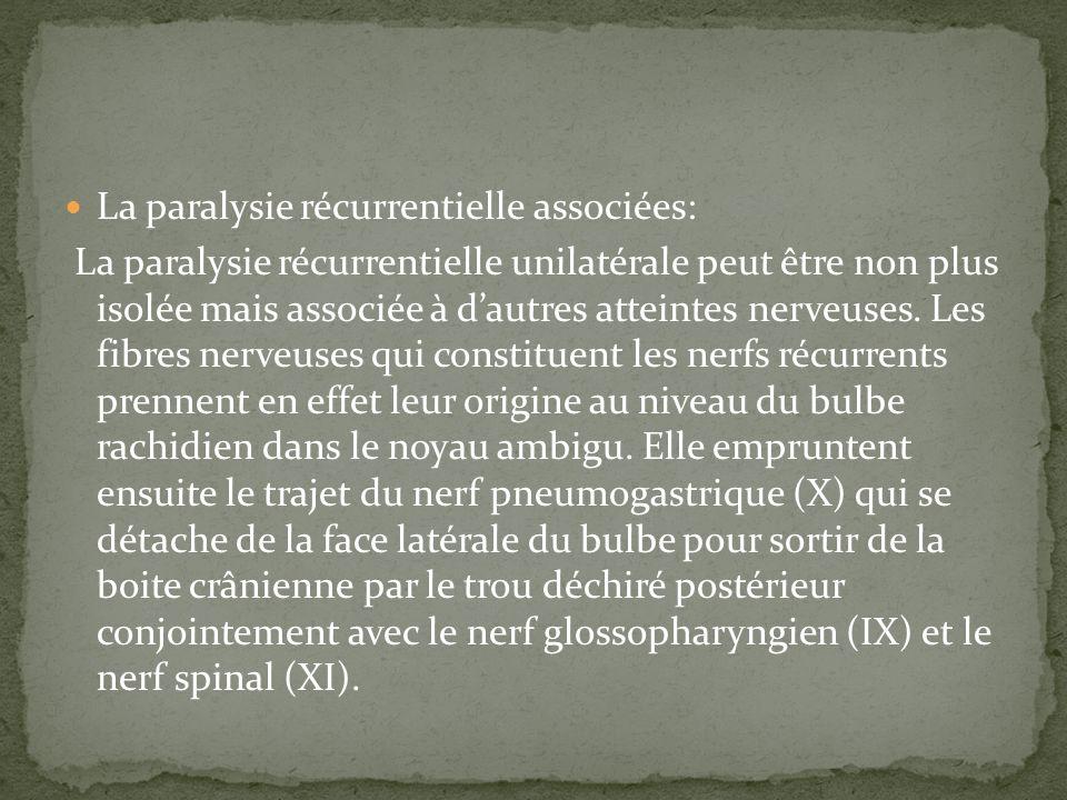 La paralysie récurrentielle associées: La paralysie récurrentielle unilatérale peut être non plus isolée mais associée à dautres atteintes nerveuses.