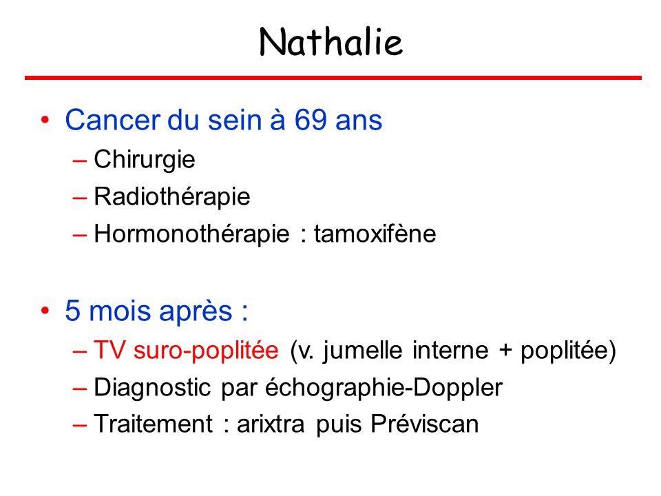 Nathalie Cancer du sein à 69 ans –Chirurgie –Radiothérapie –Hormonothérapie : tamoxifène 5 mois après : –TV suro-poplitée (v. jumelle interne + poplit