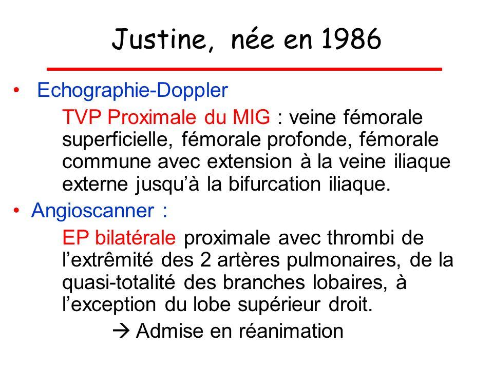 Justine, née en 1986 Echographie-Doppler TVP Proximale du MIG : veine fémorale superficielle, fémorale profonde, fémorale commune avec extension à la