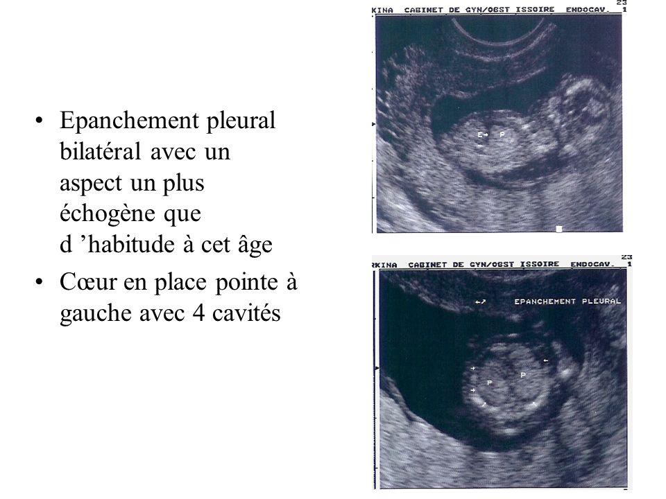 Epanchement pleural bilatéral avec un aspect un plus échogène que d habitude à cet âge Cœur en place pointe à gauche avec 4 cavités