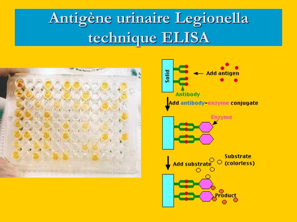 Antigène urinaire Legionella technique ELISA