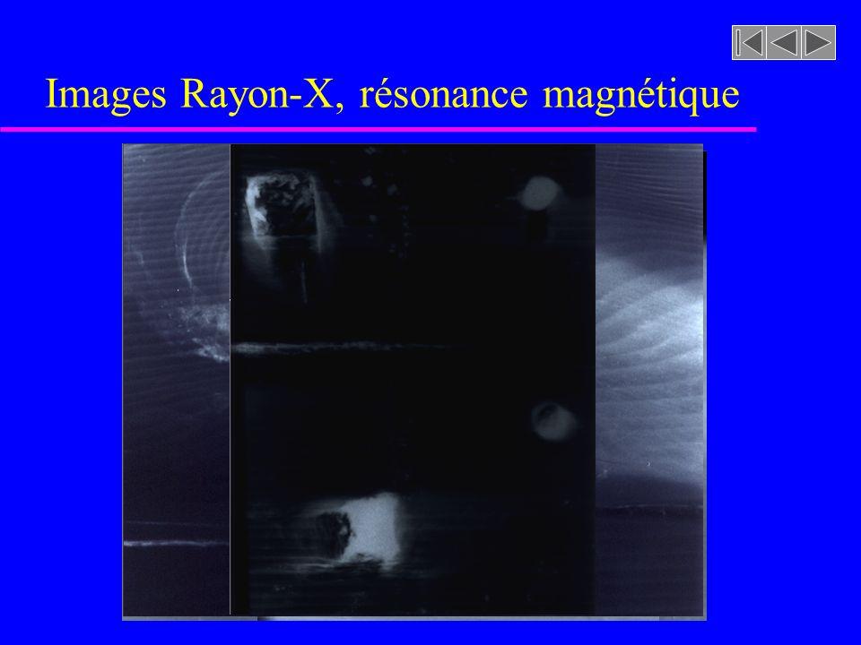 Images Rayon-X, résonance magnétique