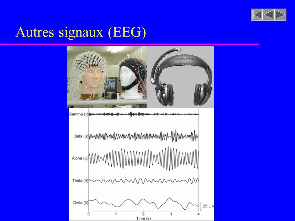 Autres signaux (EEG)