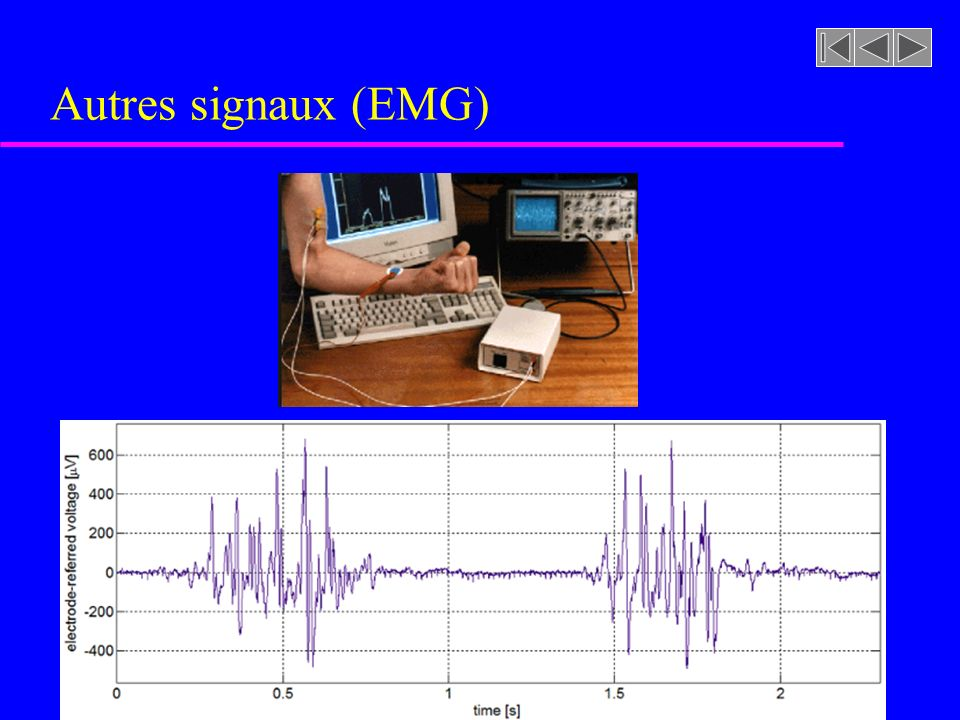 Autres signaux (EMG)