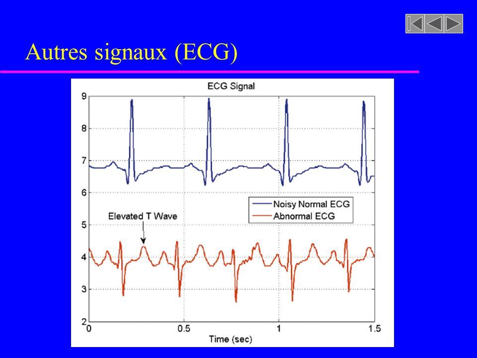 Autres signaux (ECG)