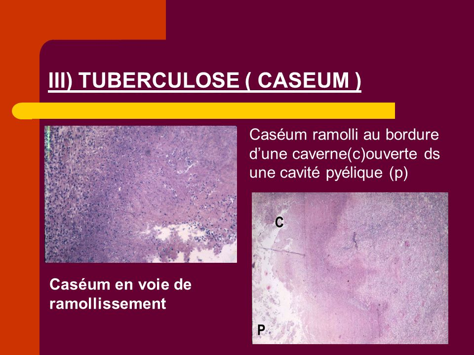 Caséum en voie de ramollissement Caséum ramolli au bordure dune caverne(c)ouverte ds une cavité pyélique (p) III) TUBERCULOSE ( CASEUM )