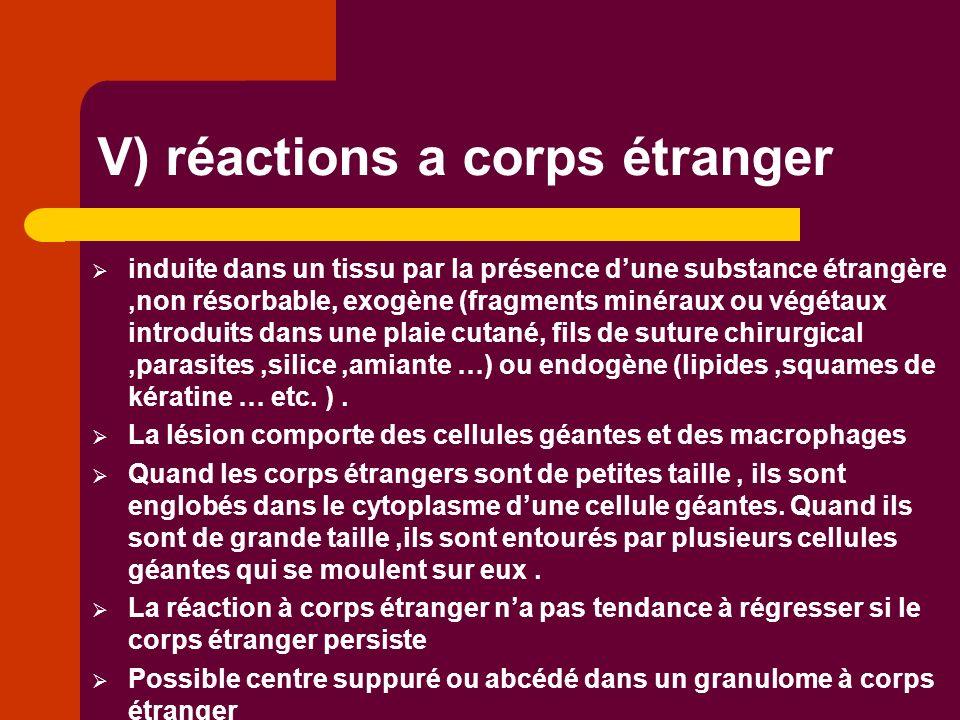 V) réactions a corps étranger induite dans un tissu par la présence dune substance étrangère,non résorbable, exogène (fragments minéraux ou végétaux i