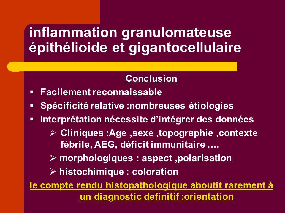 inflammation granulomateuse épithélioide et gigantocellulaire Conclusion Facilement reconnaissable Spécificité relative :nombreuses étiologies Interpr
