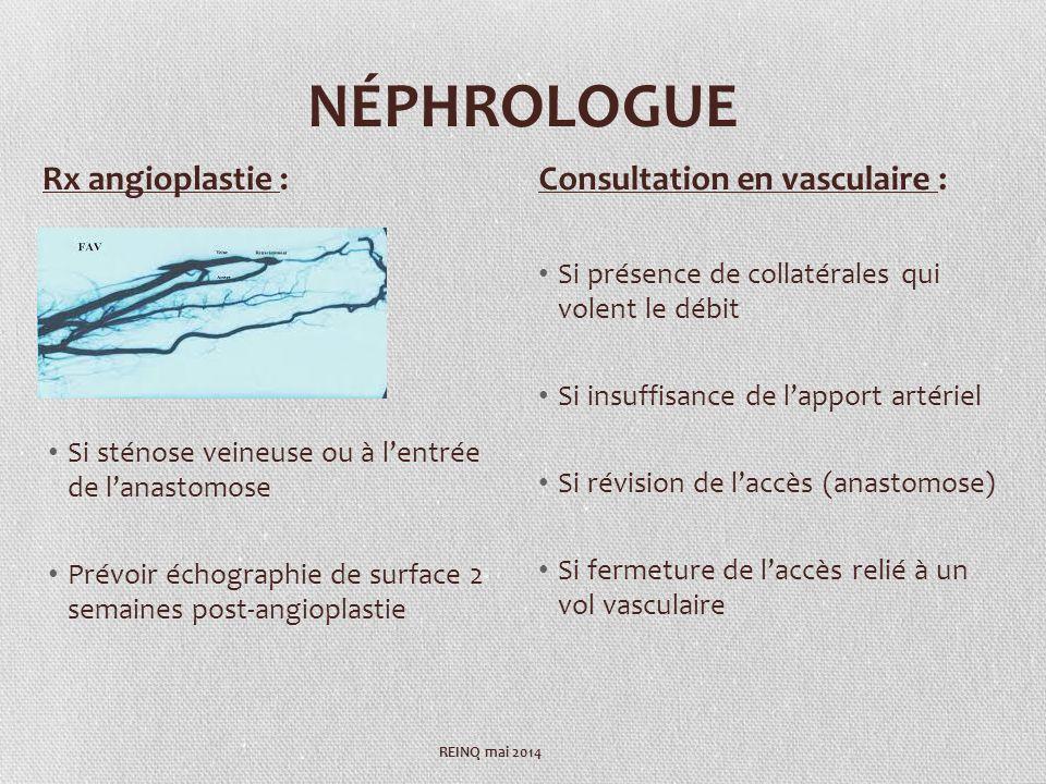 NÉPHROLOGUE Si sténose veineuse ou à lentrée de lanastomose Prévoir échographie de surface 2 semaines post-angioplastie Si présence de collatérales qu