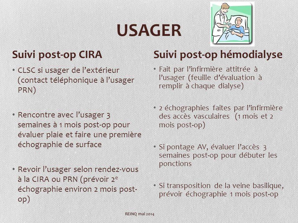 USAGER CLSC si usager de lextérieur (contact téléphonique à lusager PRN) Rencontre avec lusager 3 semaines à 1 mois post-op pour évaluer plaie et faire une première échographie de surface Revoir lusager selon rendez-vous à la CIRA ou PRN (prévoir 2 e échographie environ 2 mois post- op) Fait par linfirmière attitrée à lusager (feuille dévaluation à remplir à chaque dialyse) 2 échographies faites par linfirmière des accès vasculaires (1 mois et 2 mois post-op) Si pontage AV, évaluer laccès 3 semaines post-op pour débuter les ponctions Si transposition de la veine basilique, prévoir échographie 1 mois post-op Suivi post-op CIRASuivi post-op hémodialyse REINQ mai 2014