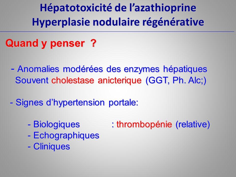 Hépatotoxicité de lazathioprine Hyperplasie nodulaire régénérative Quand y penser ? Quand y penser ? - Anomalies modérées des enzymes hépatiques - Ano