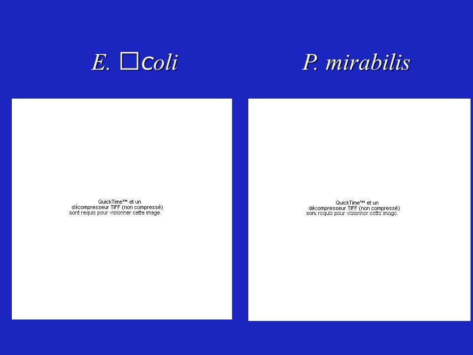 E. c oli P. mirabilis