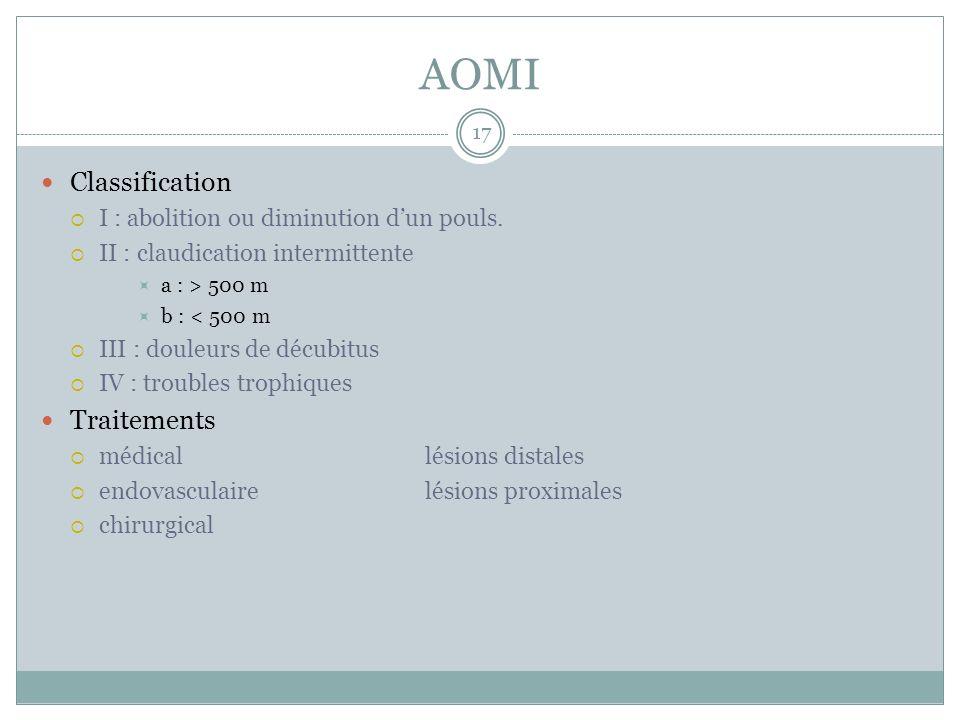 AOMI Classification I : abolition ou diminution dun pouls. II : claudication intermittente a : > 500 m b : < 500 m III : douleurs de décubitus IV : tr