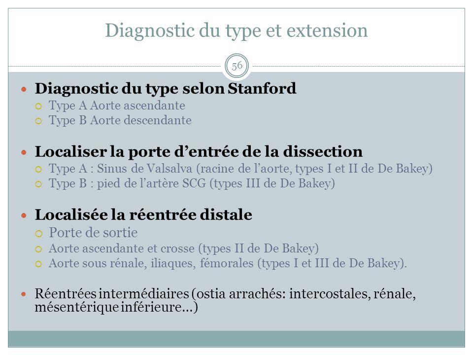 Diagnostic du type et extension 56 Diagnostic du type selon Stanford Type A Aorte ascendante Type B Aorte descendante Localiser la porte dentrée de la