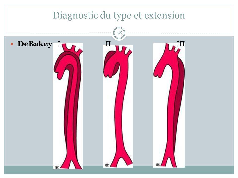Diagnostic du type et extension 58 DeBakey IIIIII