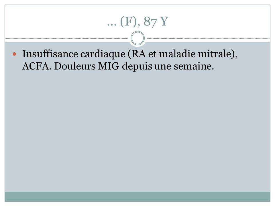 ... (F), 87 Y Insuffisance cardiaque (RA et maladie mitrale), ACFA. Douleurs MIG depuis une semaine.