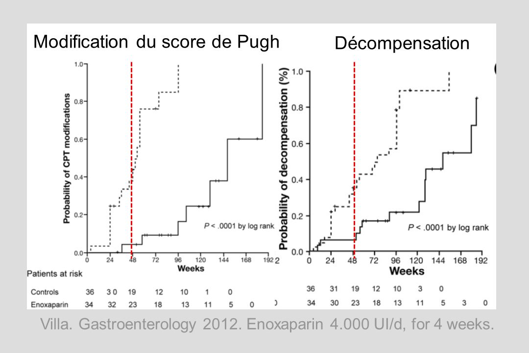 Villa. Gastroenterology 2012. Enoxaparin 4.000 UI/d, for 4 weeks. Modification du score de Pugh Décompensation