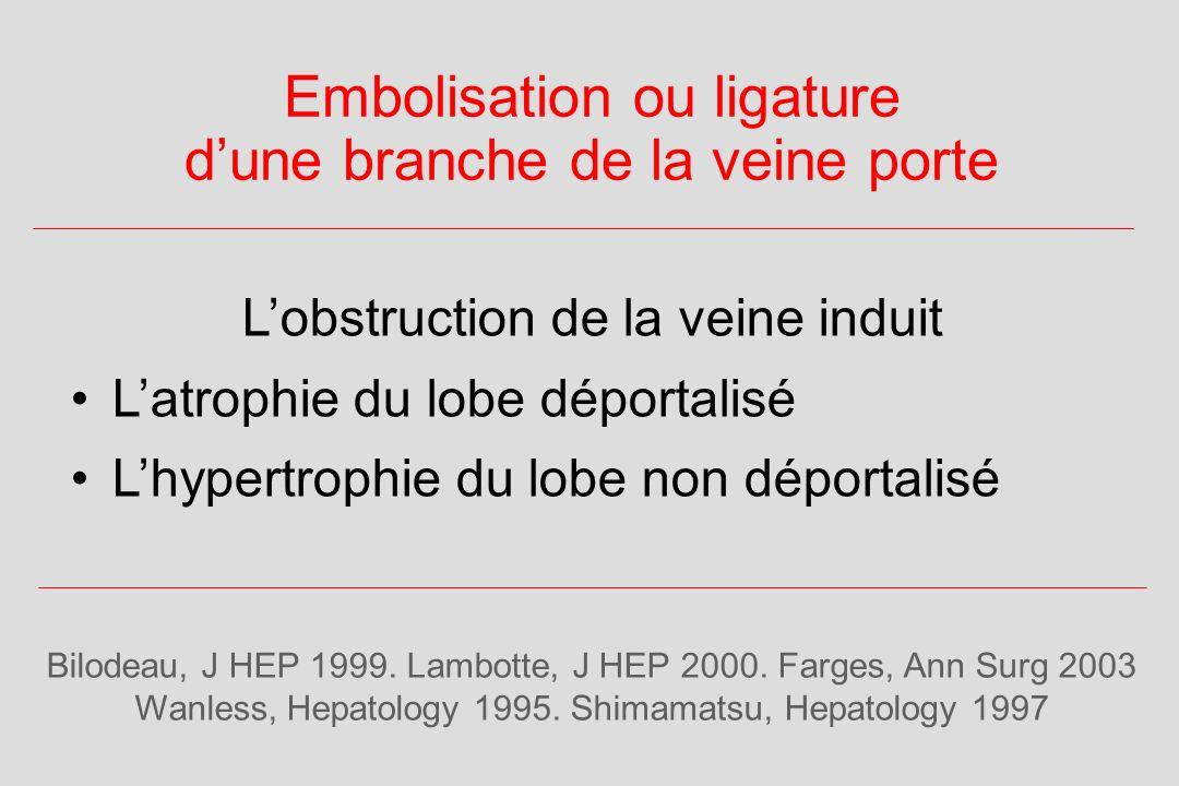 Embolisation ou ligature dune branche de la veine porte Bilodeau, J HEP 1999.