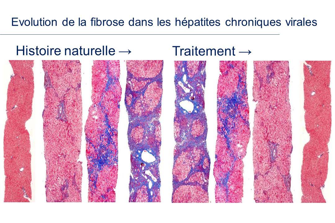 Evolution de la fibrose dans les hépatites chroniques virales Histoire naturelle Traitement