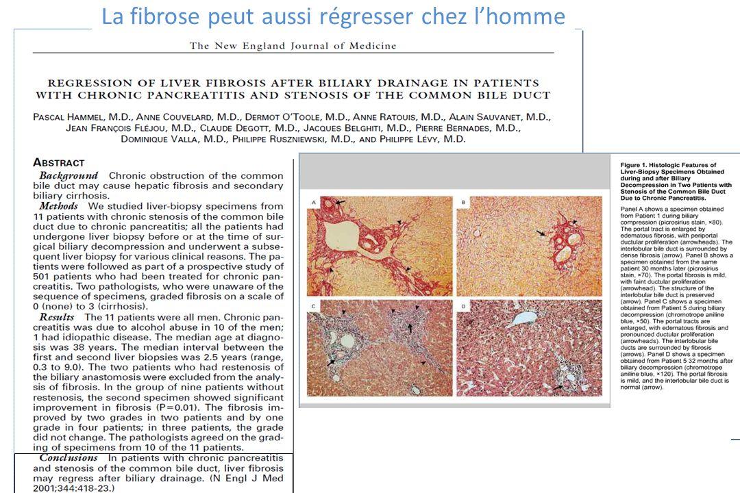 La fibrose peut aussi régresser chez lhomme