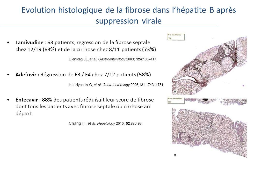 Evolution histologique de la fibrose dans lhépatite B après suppression virale Lamivudine : 63 patients, regression de la fibrose septale chez 12/19 (