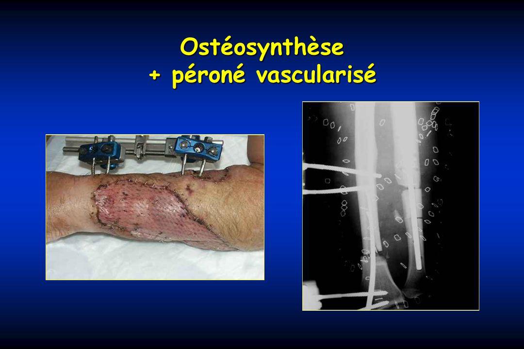 Ostéosynthèse + péroné vascularisé