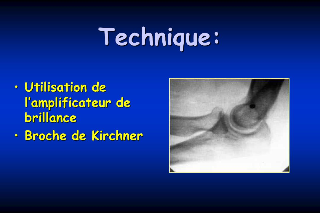 Technique: Utilisation de lamplificateur de brillanceUtilisation de lamplificateur de brillance Broche de KirchnerBroche de Kirchner