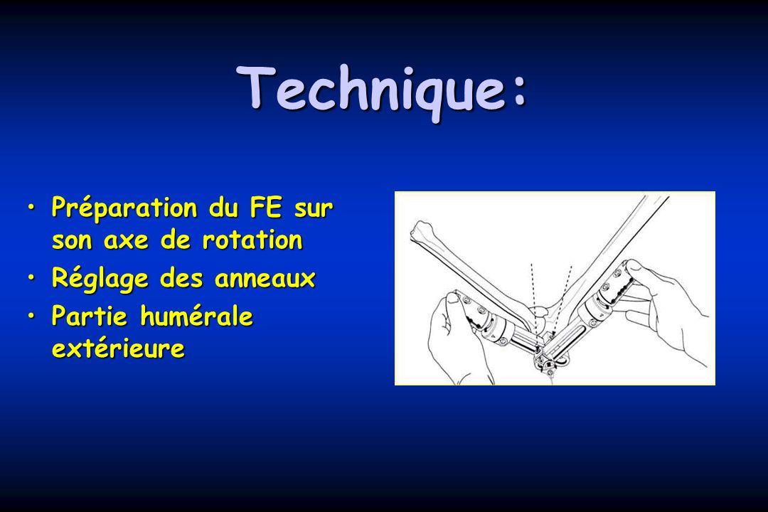 Technique: Préparation du FE sur son axe de rotationPréparation du FE sur son axe de rotation Réglage des anneauxRéglage des anneaux Partie humérale extérieurePartie humérale extérieure