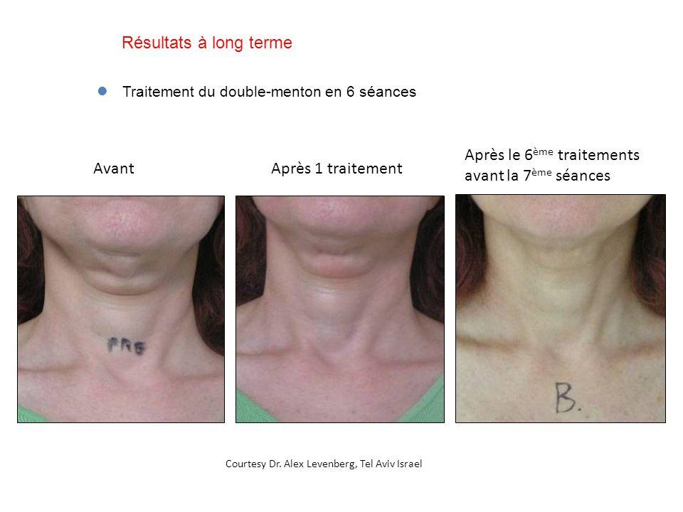Avant Après le 6 ème traitements avant la 7 ème séances Traitement du double-menton en 6 séances Après 1 traitement Courtesy Dr. Alex Levenberg, Tel A