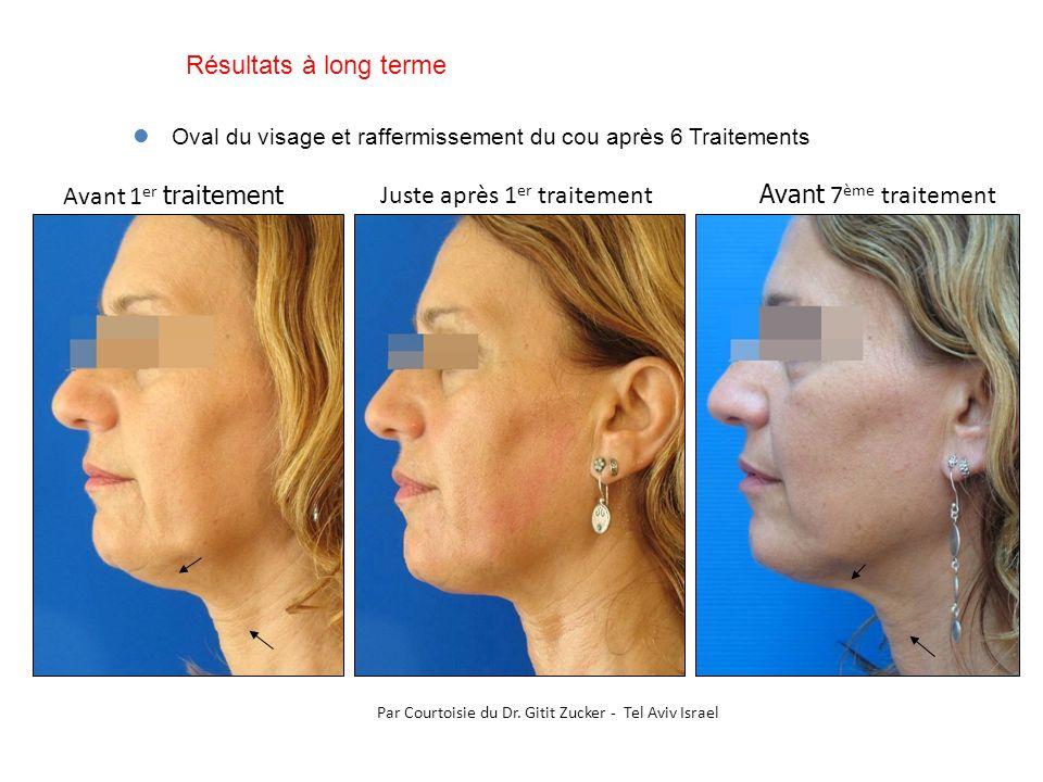 Avant 1 er traitement Avant 7 ème traitement Oval du visage et raffermissement du cou après 6 Traitements Par Courtoisie du Dr. Gitit Zucker - Tel Avi