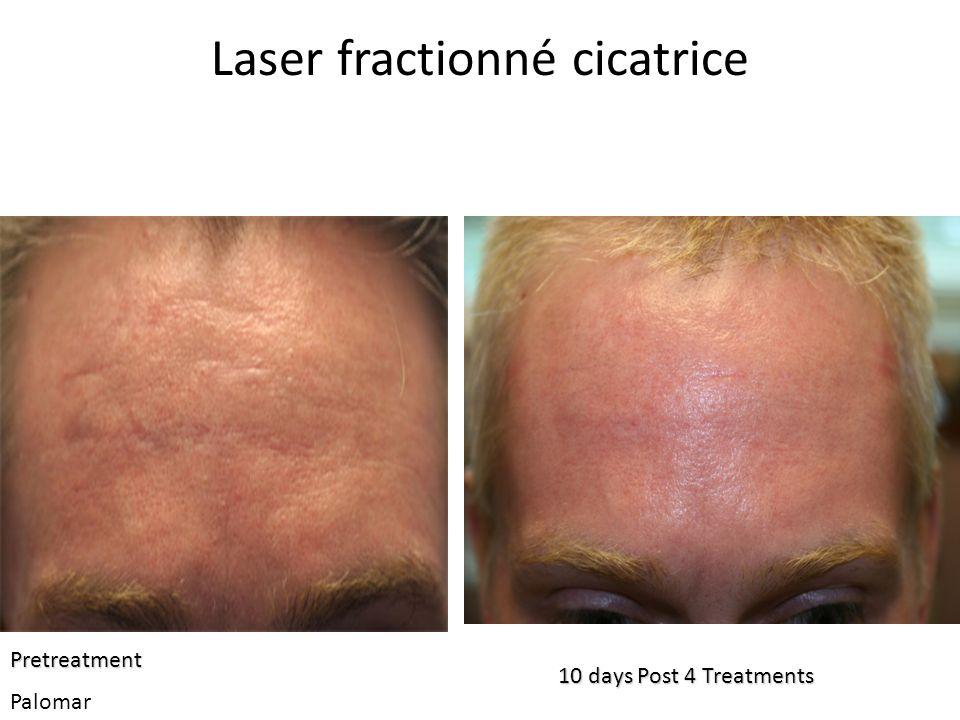 Laser fractionné cicatrice 10 days Post 4 Treatments Pretreatment Palomar