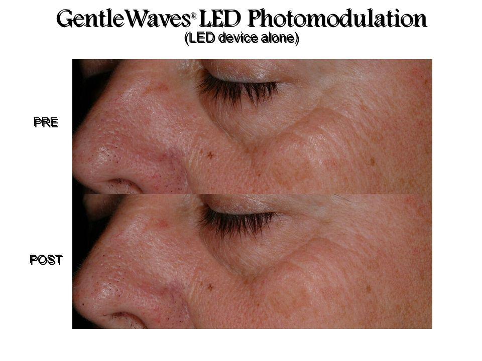 PRE POST GentleWaves ® LED Photomodulation (LED device alone) GentleWaves ® LED Photomodulation (LED device alone)