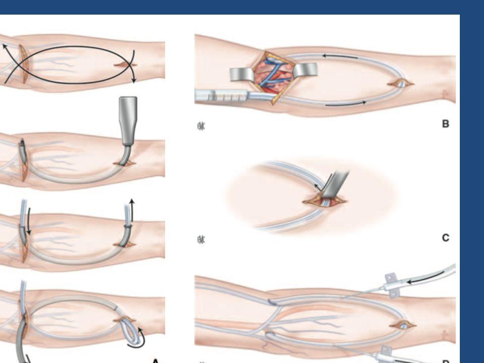 AVANT BRAS Pontage à partir de lartère humérale: ANSE / LOOP -Fréquemment utilisé -Abord de lartère humérale ou du tronc cubito- interosseux. Anastomo