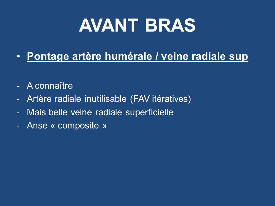 AVANT BRAS Pontage artère humérale / veine radiale sup -A connaître -Artère radiale inutilisable (FAV itératives) -Mais belle veine radiale superficie