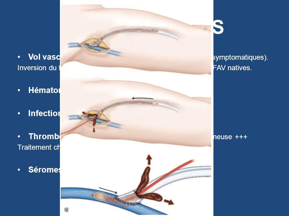 COMPLICATIONS Vol vasculaire +++ : 9 % Vs 1% pour les FAV natives (symptomatiques). Inversion du flux dans lartère: 91% pour PTFE vs 73% dans FAV nati