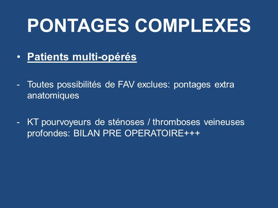 PONTAGES COMPLEXES Patients multi-opérés -Toutes possibilités de FAV exclues: pontages extra anatomiques -KT pourvoyeurs de sténoses / thromboses vein