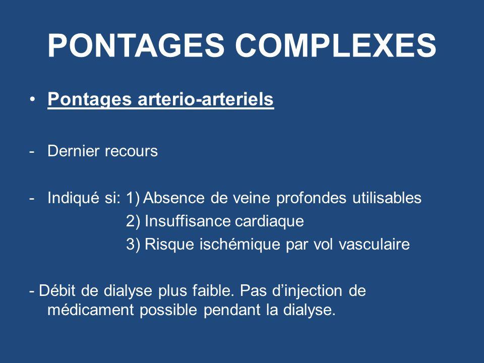 PONTAGES COMPLEXES Pontages arterio-arteriels -Dernier recours -Indiqué si: 1) Absence de veine profondes utilisables 2) Insuffisance cardiaque 3) Ris