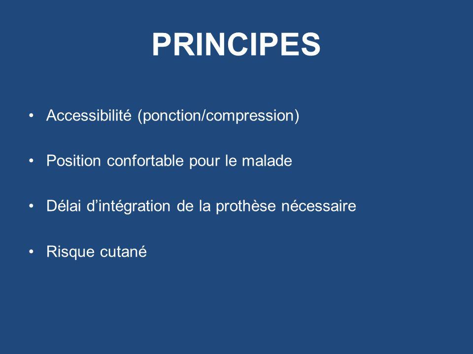PRINCIPES Accessibilité (ponction/compression) Position confortable pour le malade Délai dintégration de la prothèse nécessaire Risque cutané