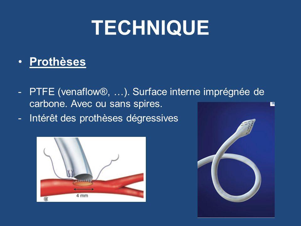 TECHNIQUE Prothèses -PTFE (venaflow®, …). Surface interne imprégnée de carbone. Avec ou sans spires. -Intérêt des prothèses dégressives