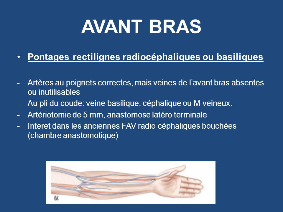 AVANT BRAS Pontages rectilignes radiocéphaliques ou basiliques -Artères au poignets correctes, mais veines de lavant bras absentes ou inutilisables -A