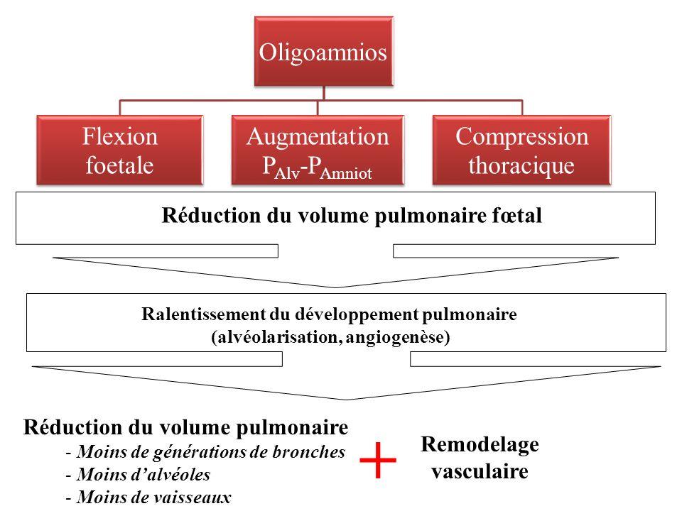 Oligoamnios Flexion foetale Augmentation PAlv-PAmniot Compression thoracique Réduction du volume pulmonaire fœtal Ralentissement du développement pulmonaire (alvéolarisation, angiogenèse) Réduction du volume pulmonaire - Moins de générations de bronches - Moins dalvéoles - Moins de vaisseaux + Remodelage vasculaire