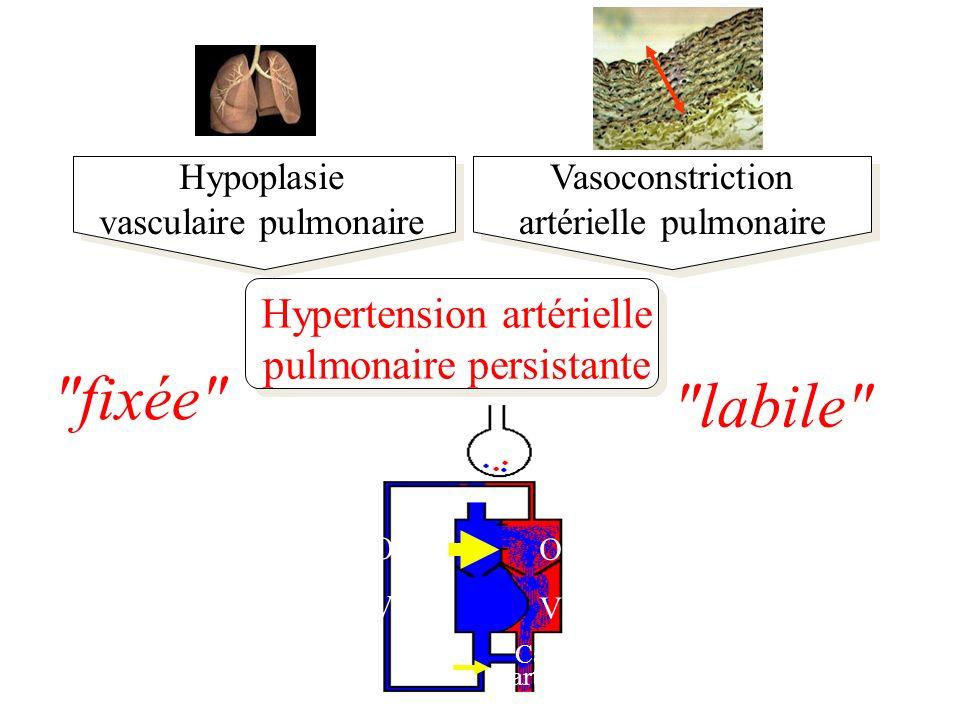Hypoplasie vasculaire pulmonaire Vasoconstriction artérielle pulmonaire Hypertension artérielle pulmonaire persistante fixée labile Alvéole OD VD OG VG Canal artériel