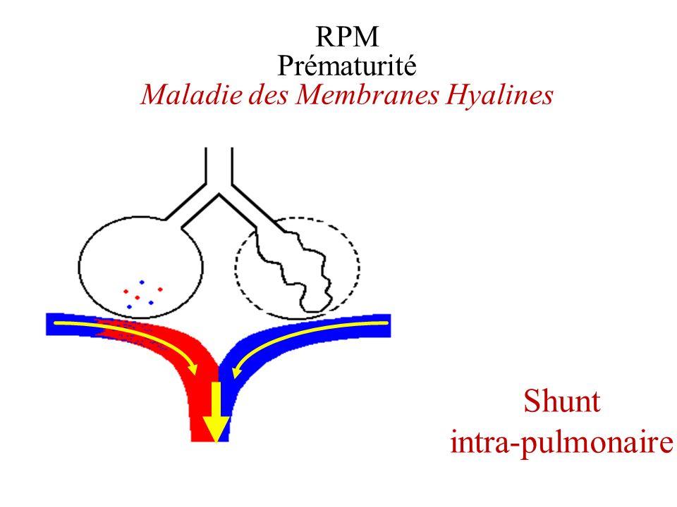 RPM Prématurité Maladie des Membranes Hyalines Shunt intra-pulmonaire