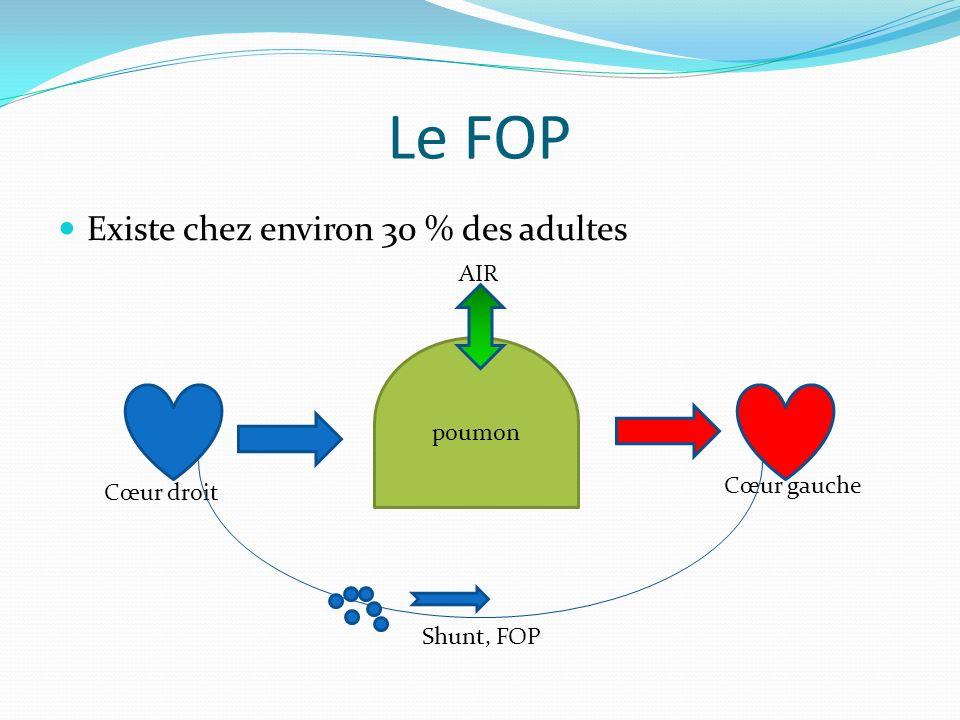 Le FOP Existe chez environ 30 % des adultes Cœur droit Cœur gauche poumon Shunt, FOP AIR