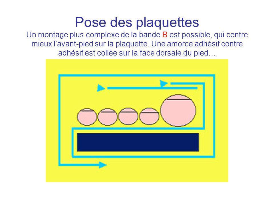 Pose des plaquettes Un montage plus complexe de la bande B est possible, qui centre mieux lavant-pied sur la plaquette. Une amorce adhésif contre adhé