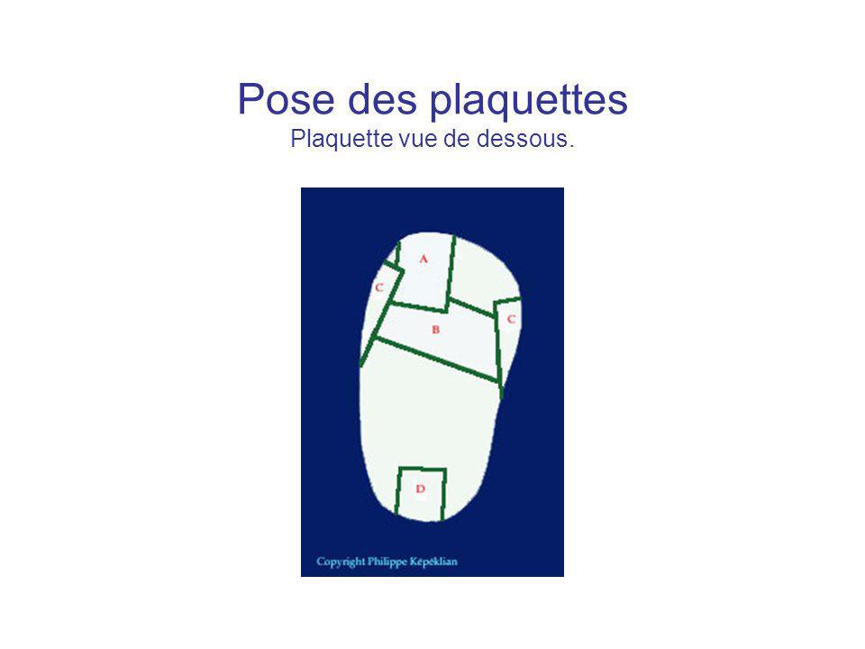 Pose des plaquettes Plaquette vue de dessous.