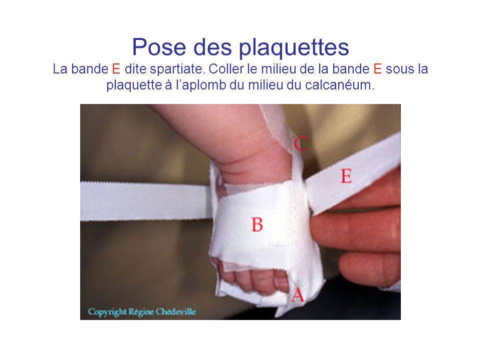 Pose des plaquettes La bande E dite spartiate. Coller le milieu de la bande E sous la plaquette à laplomb du milieu du calcanéum.