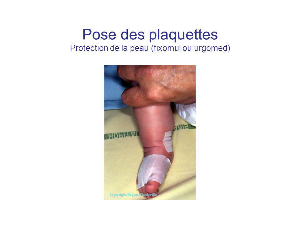 Pose des plaquettes Protection de la peau (fixomul ou urgomed)