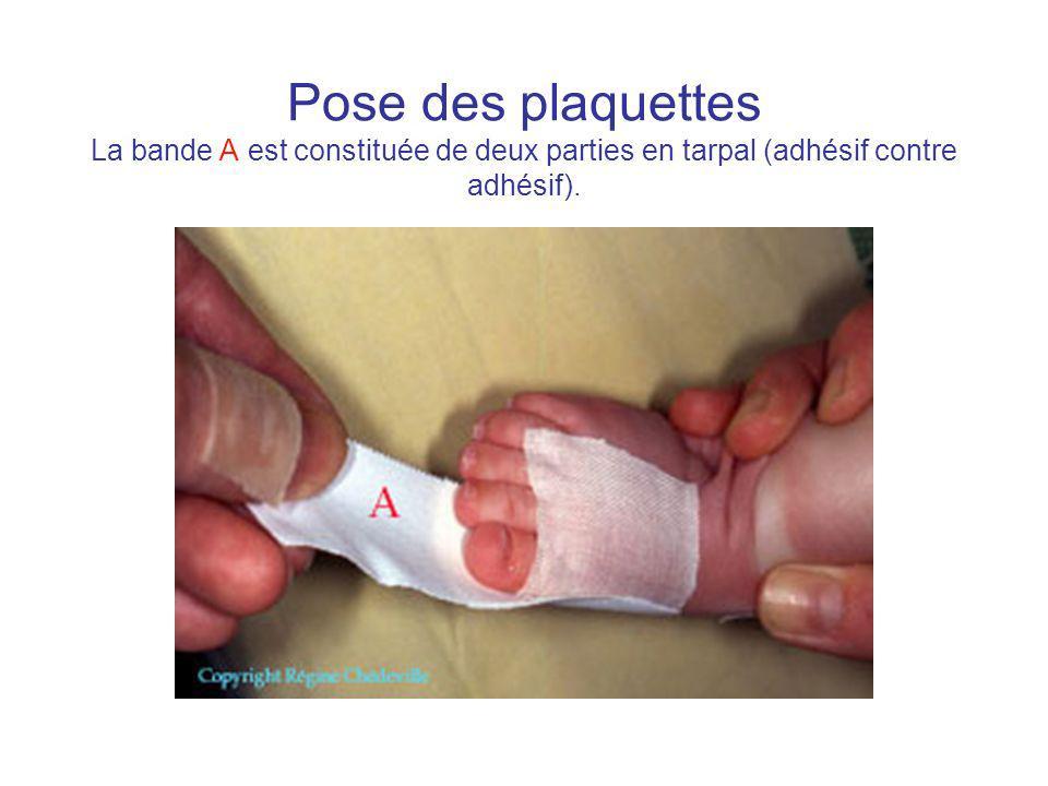 Pose des plaquettes La bande A est constituée de deux parties en tarpal (adhésif contre adhésif).
